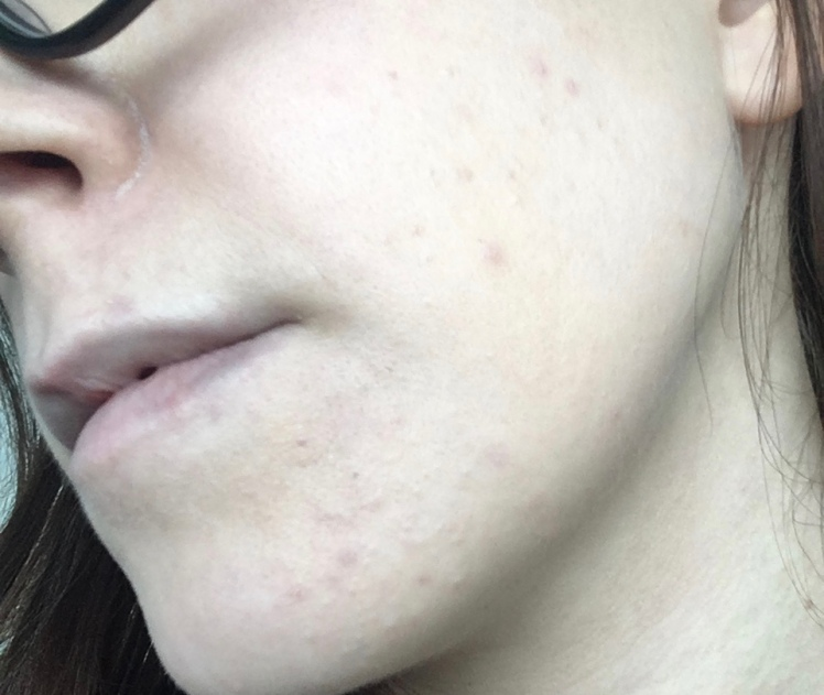Hormonal Acne and a Dairy Free Diet